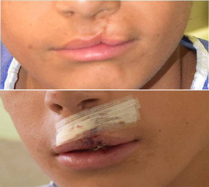 عكس قبل و بعد از عمل شكاف لب